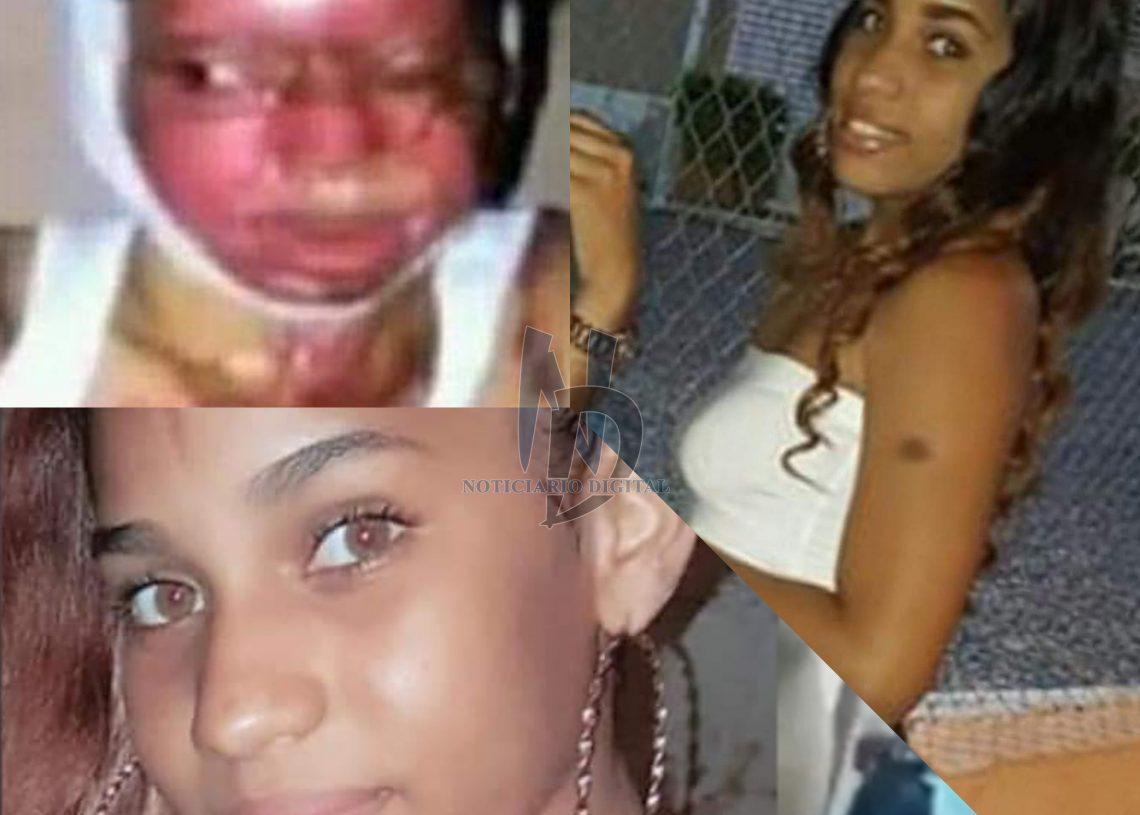 """VIDEO- ¡Terrible! el daño que le hicieron a esta joven luego de que desconocidos lanzarán """"ácido del diablo"""" en su rostro"""